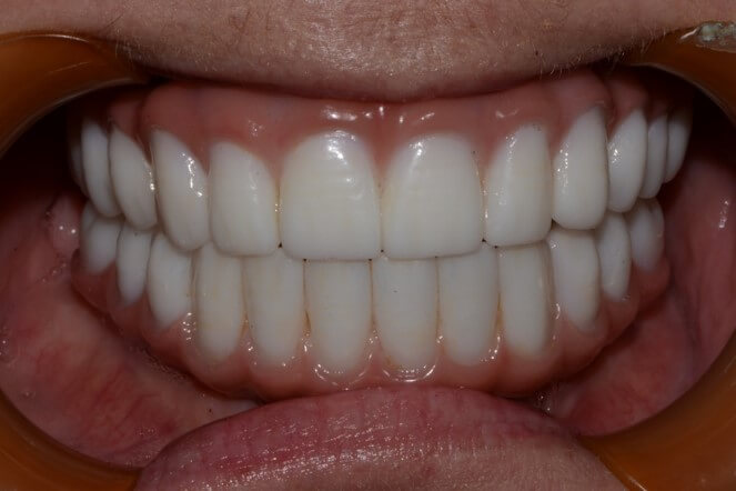 Removal of all teeth, placement of implants with fixed upper and lower bridges