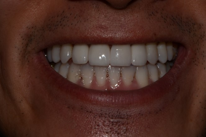 Teeth Whitening with 4 Anterior Veneers