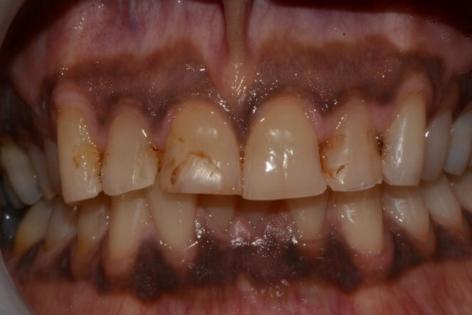 Composite Tooth Build-Up