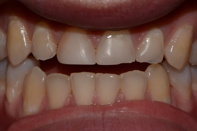 Composite Tooth Build up, and Bite Adjustment