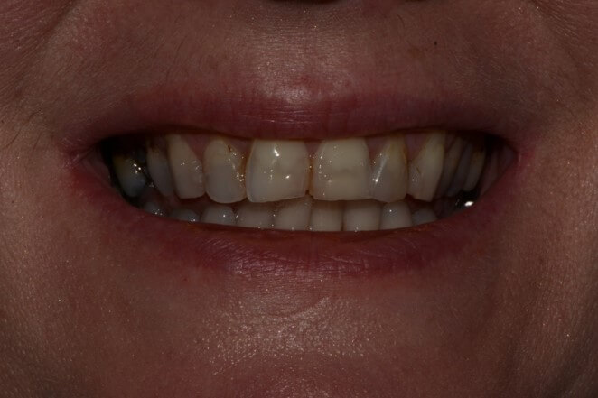 Porcelain Crowns (upper and lower)