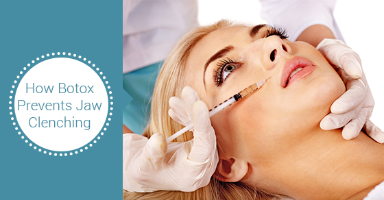 Botox Toronto | Preventing Jaw Clenching