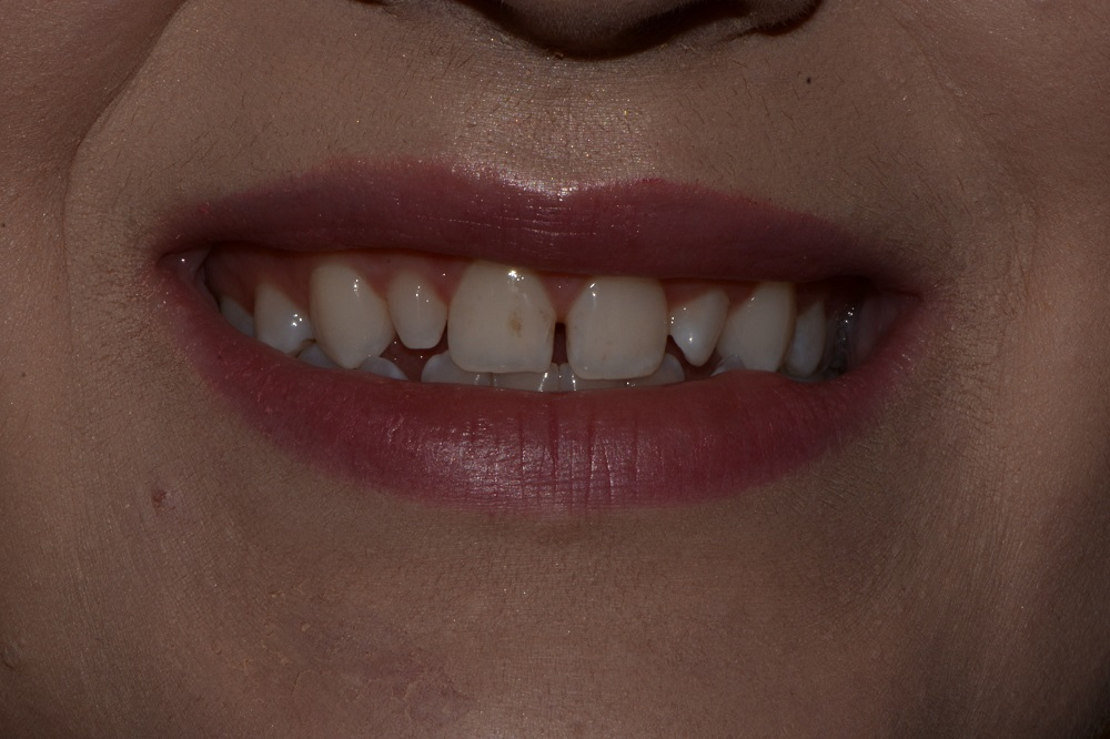Steph: Invisalign Treatment and Anterior Veneers